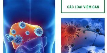 các loại viêm gan phổ biến